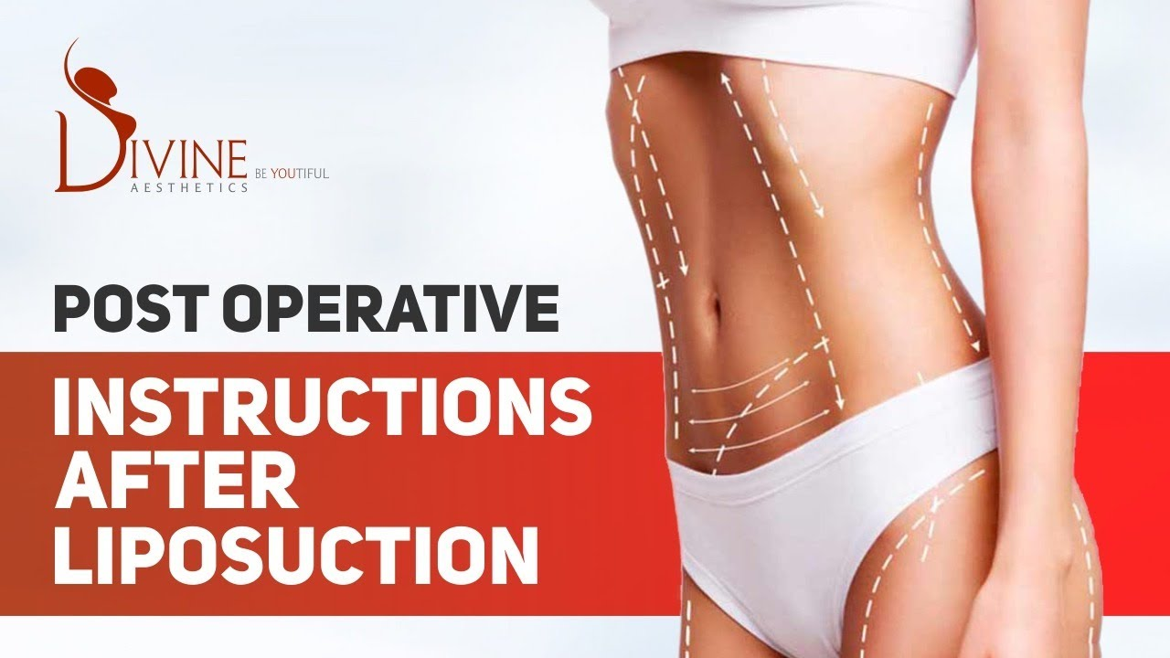 On Which Body Parts Liposuction Can be Performed and Its Procedure?
